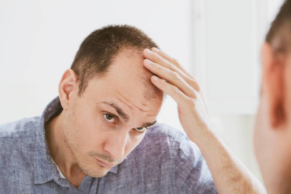 Hair transplantation is a highly personal decision, and not all people experiencing baldness decide to undertake surgery in order to treat their hair loss. Picture: Shutterstock.